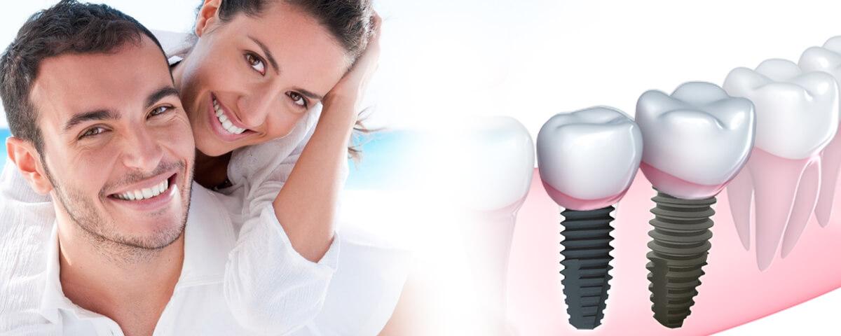 implantes-dentales-banner